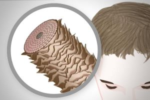 Types of male hair loss